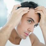 Hair Loss: Male